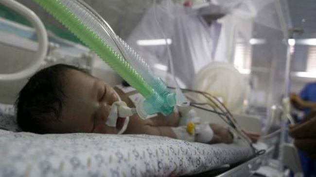 A Palestinian baby girl lies in an incubator after Israeli airstrike kills her mother on July 25, 2014.