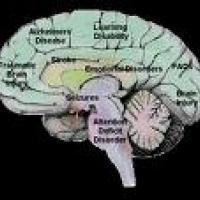 Pillsbury's Brain