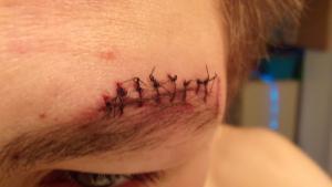 My Stitches's Thumbnail